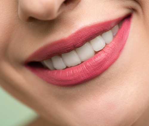 beautiful smile of a woman who had teeth whitening treatment